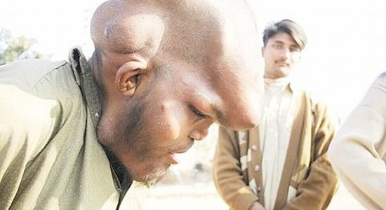 This Beggar Found in Pakistan
