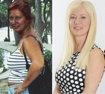 Old Mother did a Plastic Surgery to look like Her Daughter