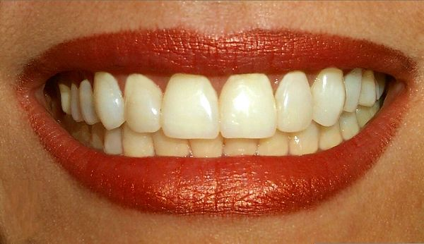 How to Keep Teeth White Naturally