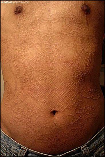 Scarification As Body Art Xcitefun Net