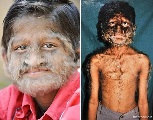 Most Bizarre Skin Conditions Xcitefun Net