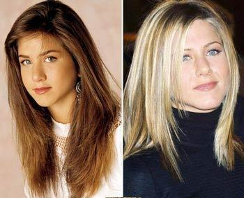 AmazingCelebrities Before and After Pictures
