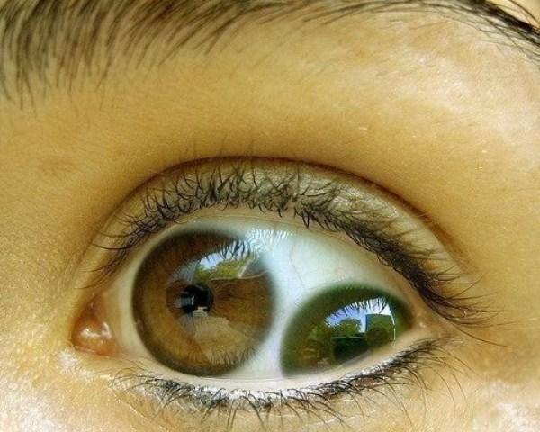 самое маленькое что видит глаз определенные участки